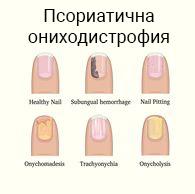 Псориазис на ноктите : причини, симптоми, диагноза, лечение | Компетентно за здравето на Psorilin